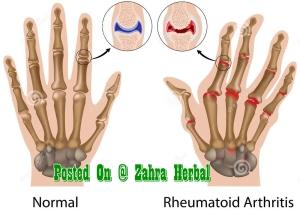 http://www.dreamstime.com/royalty-free-stock-photo-rheumatoid-arthritis-hand-image22366005